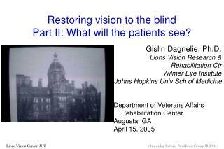 Restoring vision to the blind Part II: What will the patients see?