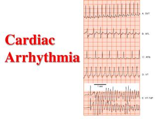 Cardiac Arrhythmia