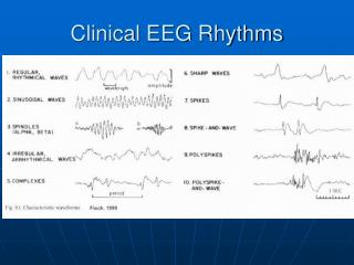 Clinical EEG Rhythms