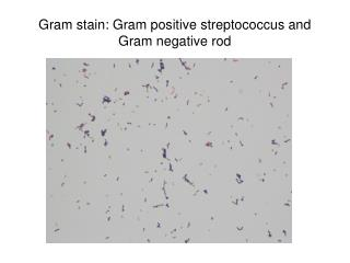 Gram stain: Gram positive streptococcus and Gram negative rod