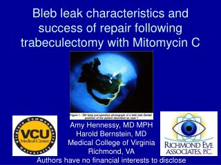 Bleb leak characteristics and success of repair following trabeculectomy with Mitomycin C