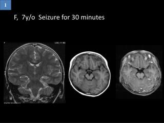 F,  7y/o  Seizure for 30 minutes