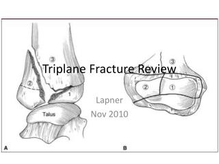 Triplane Fracture Review