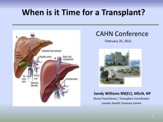 When is it Time for a Transplant?