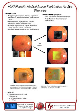 Multi-Modality Medical Image Registration for Eye Diagnosis