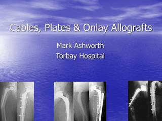 Cables, Plates & Onlay Allografts