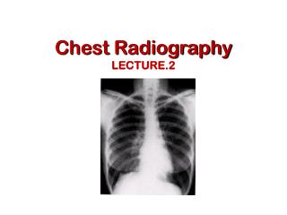 Chest Radiography LECTURE.2
