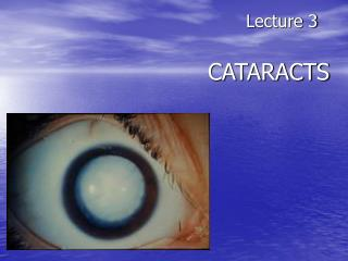 Lecture 3 CATARACTS