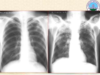 肺肿瘤 Pulmonary neoplasms