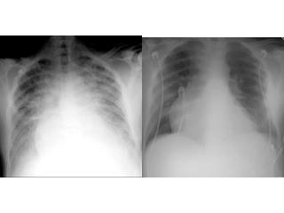 D.D of Unilaterally  Opacified  Lung