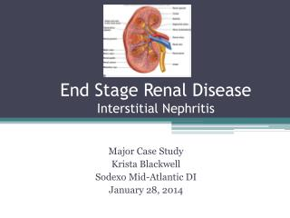 End Stage Renal Disease Interstitial Nephritis