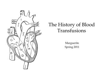 The History of Blood Transfusions