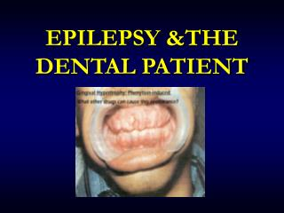 EPILEPSY &THE DENTAL PATIENT