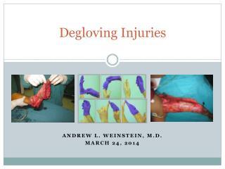 Degloving Injuries