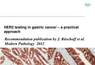 HER2 testing in gastric cancer – a practical approach