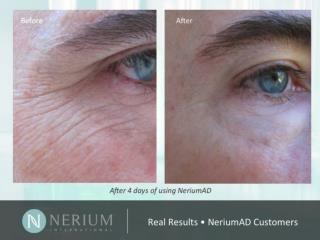Results Photos Of Breakthrough Anti-Aging Cream
