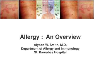 Allergy :  An Overview Alyson W. Smith, M.D. Department of Allergy and Immunology