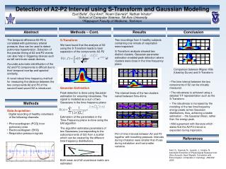 Detection of A2-P2 Interval using S-Transform and Gaussian Modeling