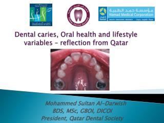 Dental caries, Oral health and lifestyle variables – reflection from Qatar