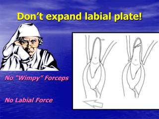 Don't expand labial plate!