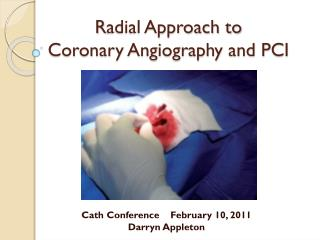 R adial Approach to  Coronary Angiography and PCI