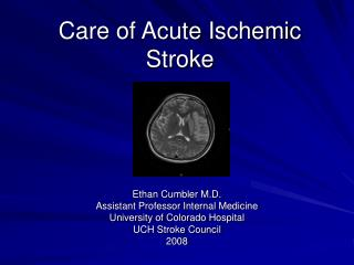 Care of Acute Ischemic Stroke