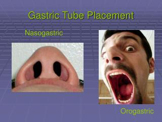 Gastric Tube Placement