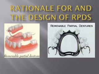 RATIONALE FOR AND THE DESIGN OF RPDs