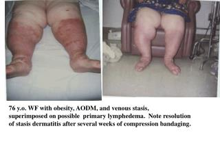 76 y.o. WF with obesity, AODM, and venous stasis,