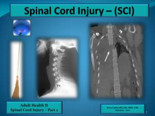 Spinal Cord Injury – (SCI)