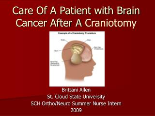 Care Of A Patient with Brain Cancer After A  Craniotomy