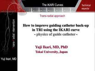 How to improve guiding catheter back-up in TRI using the IKARI curve - physics of guide catheter -