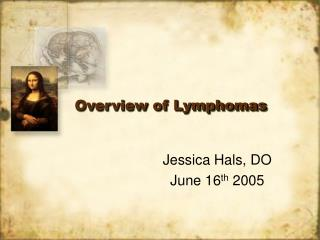 Overview of Lymphomas