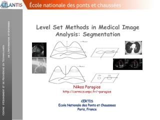 Level Set Methods in Medical Image Analysis: Segmentation