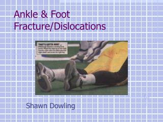 Ankle & Foot Fracture/Dislocations