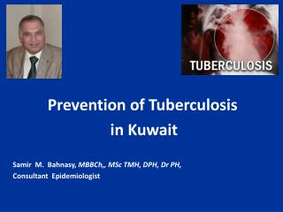 Prevention of Tuberculosis  in Kuwait  Samir  M.  Bahnasy, MBBCh,, MSc TMH, DPH, Dr PH, Consultant  Epidemiologist