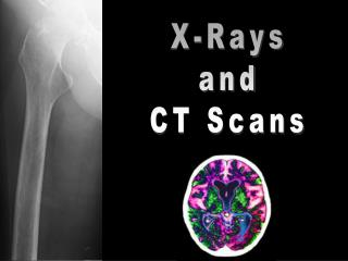 X-Rays and CT Scans