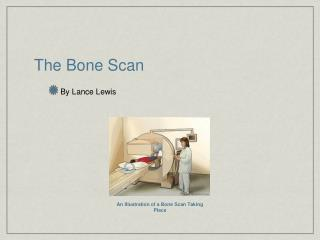 The Bone Scan