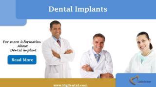 Dental Impalnts