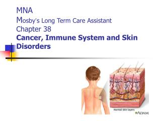 MNA M osby ' s Long Term Care Assistant Chapter 38 Cancer, Immune System and Skin Disorders