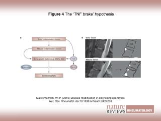 Figure 4  The 'TNF brake' hypothesis