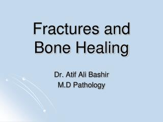 Fractures and Bone Healing
