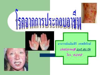 อาจารย์เฉลิมสิริ  เทพพิทักษ์ chalerm@  sut.ac.th โทร.  4248