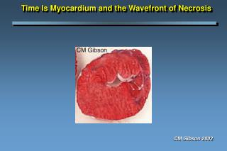 Time Is Myocardium and the Wavefront of Necrosis