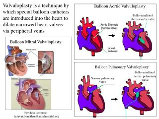 Balloon Mitral Valvuloplasty
