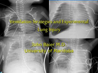 Ventilation Strategies and Experimental Lung Injury