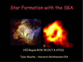 Star Formation with the SKA