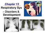 Chapter 13  Respiratory Sys   Disorders  Development