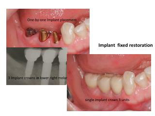 3 Implant crowns i n  lower right molar