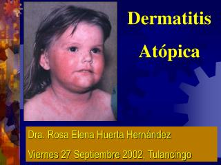Dermatitis At pica